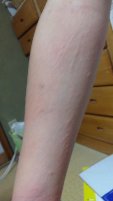 麻疹 蚊 画像 刺され に 蕁 よう た な